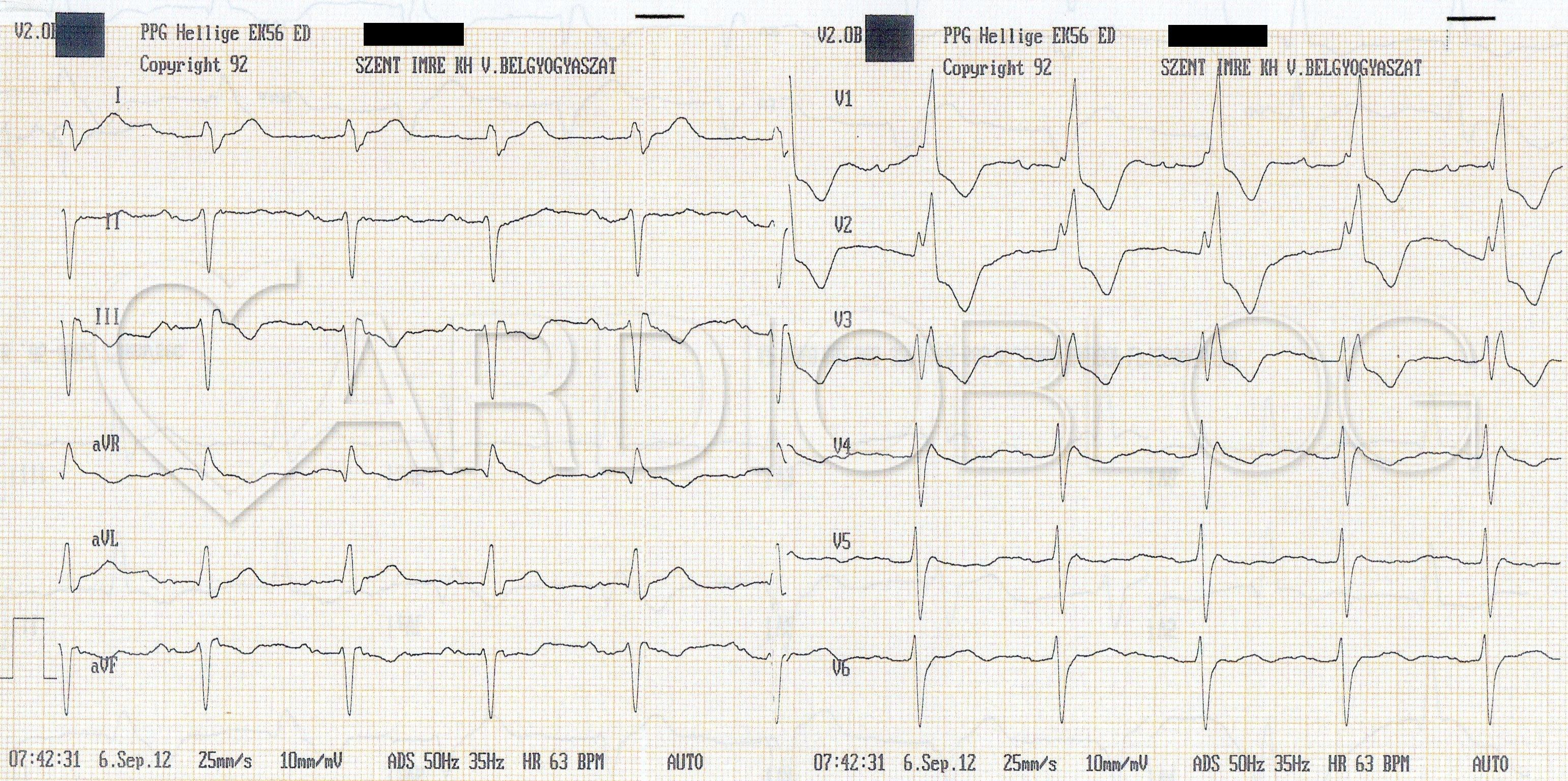 az EKG következtetése a magas vérnyomásban a magas vérnyomás kezelésében új