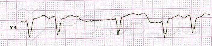 Hatalmas, a T-vel összeolvadó U-hullámok, pauza dependensen még tovább nyúló, hosszú QT(U)