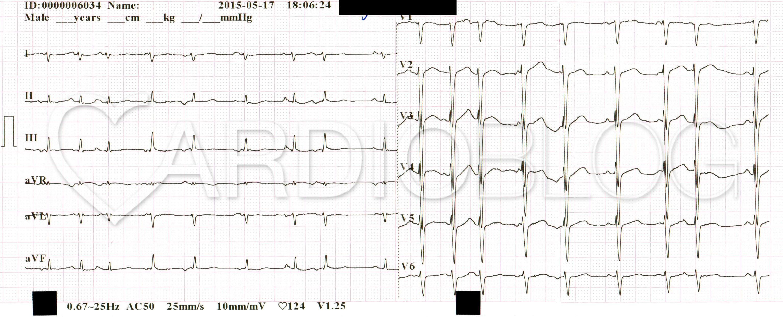EKG átirat hipertónia esetén