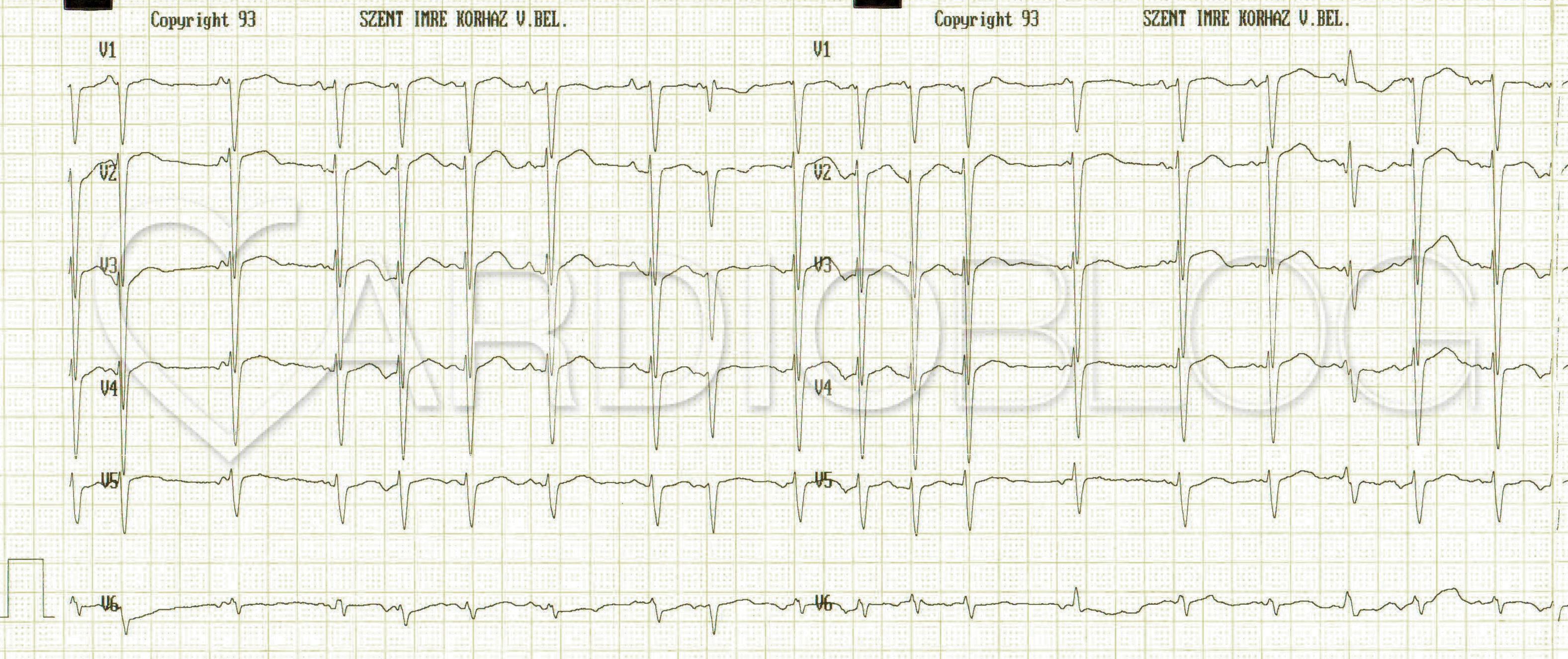 EKG átirat hipertónia esetén a szív hipertóniának hangzik