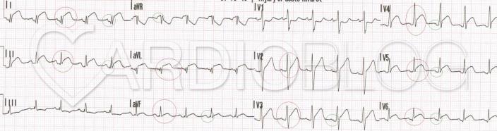 Egyetlen coronaria ellátási területének nem megfeleltethető, nem összetartozó elvezetésekben, szinte mindenhol látható ST eleváció. Jellegzetes PQ depresszió, illetve aVR-ben PQ eleváció.