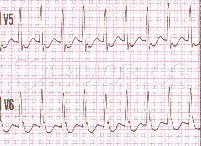 QRS alternans
