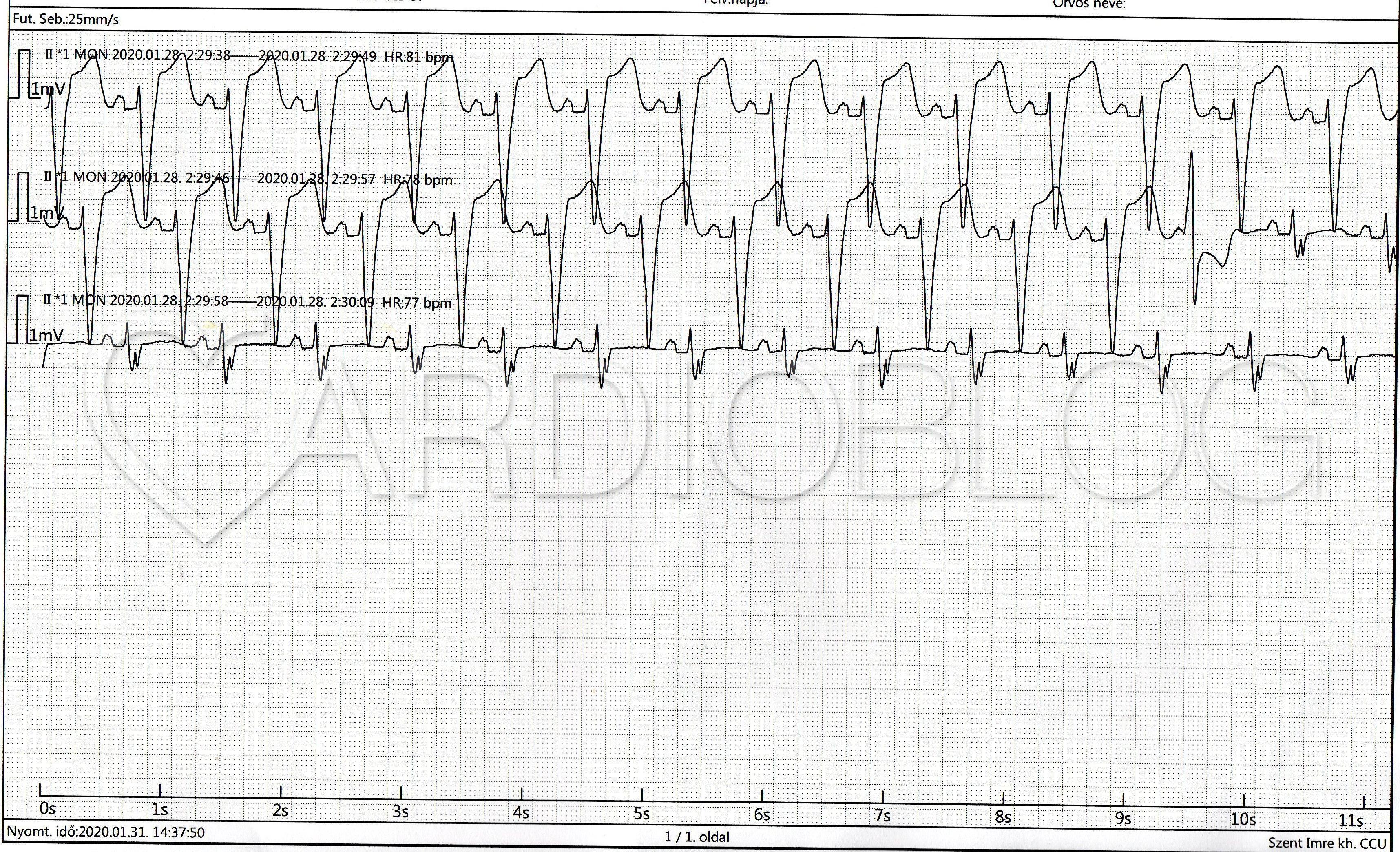 hogyan kezelhető a tachycardia magas vérnyomással)