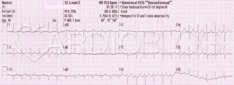 magas vérnyomás sinus tachycardia)