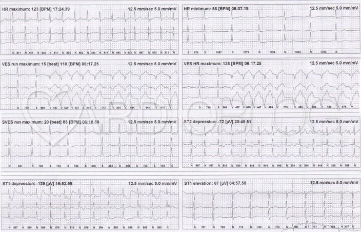 magas vérnyomás a tachycardia hátterében